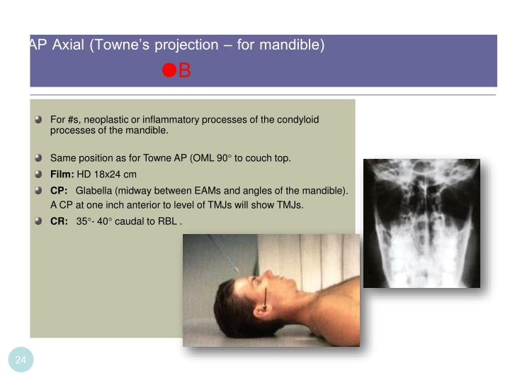 AP Axial (Towne's projection – for mandible)