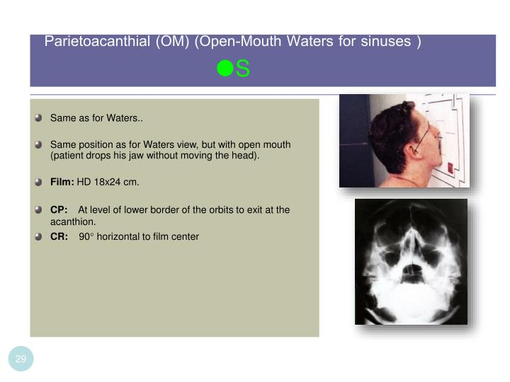 Parietoacanthial (OM) (Open-Mouth Waters for sinuses )