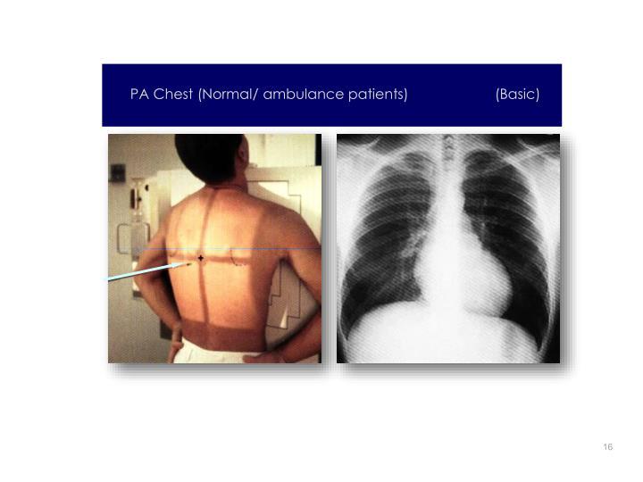 PA Chest (Normal/ ambulance patients)                      (Basic)