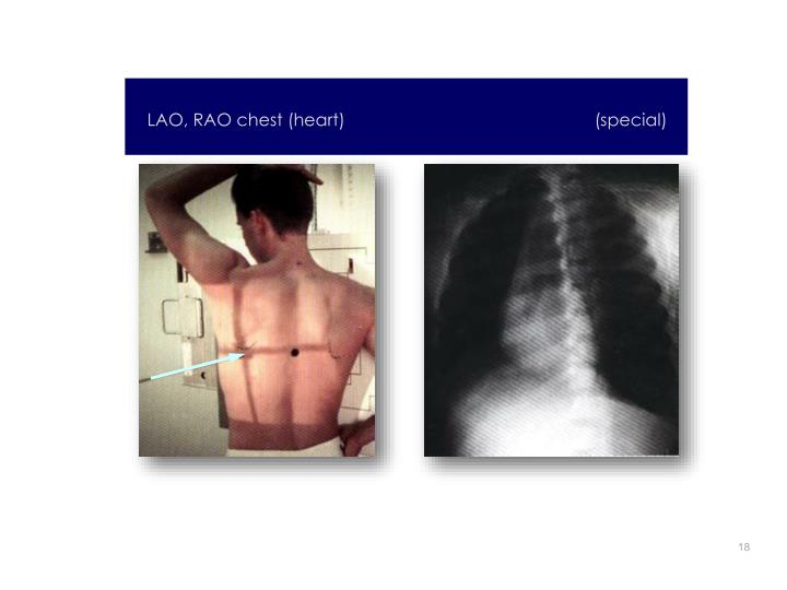 LAO, RAO chest (heart)                                                    (special)