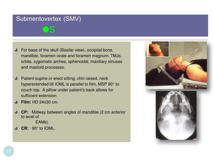 Submentovertex (SMV)