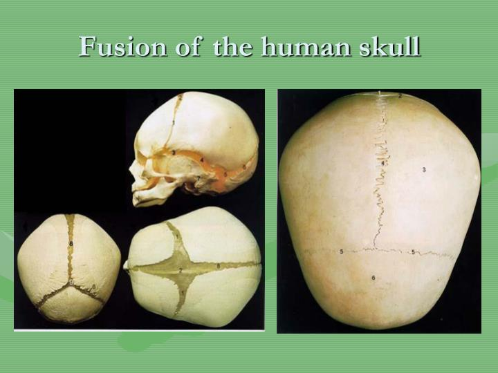 Fusion of the human skull