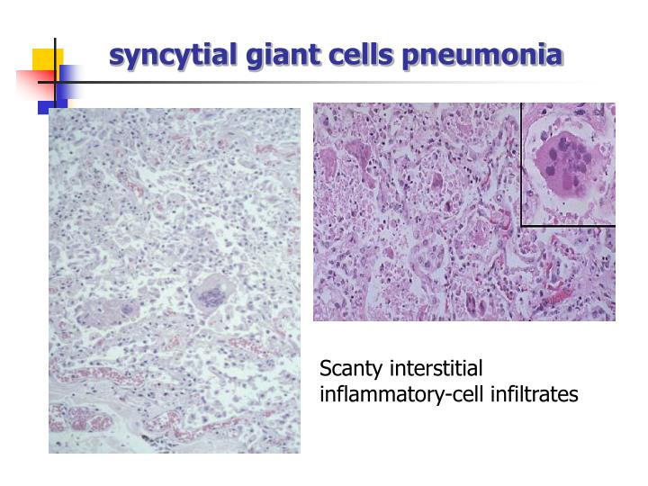 syncytial giant cells pneumonia