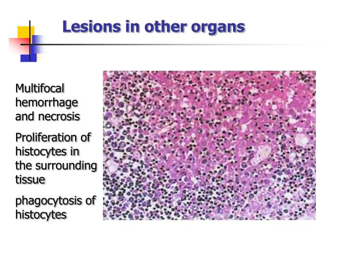 Lesions in other organs