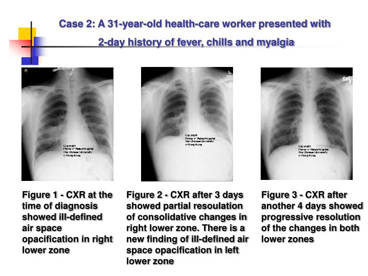 Case 2: A 31-year-old health-care worker presented with