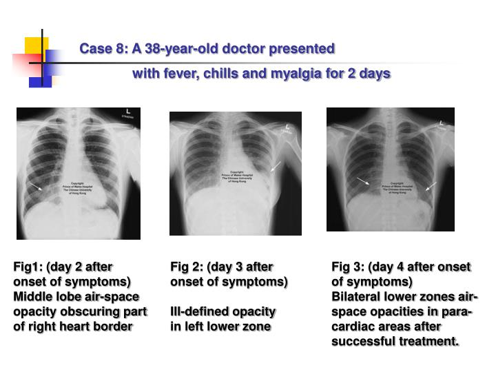 Case 8: A 38-year-old doctor presented