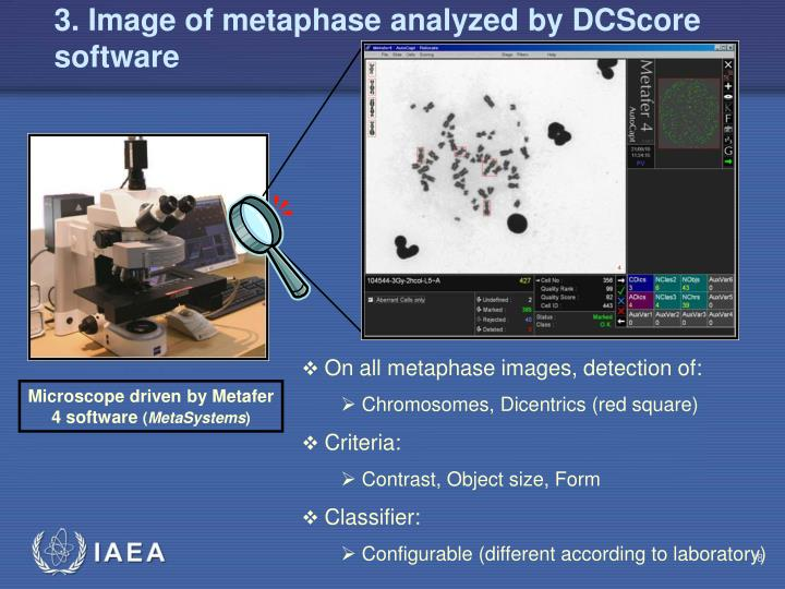3. Image of metaphase analyzed by DCScore software