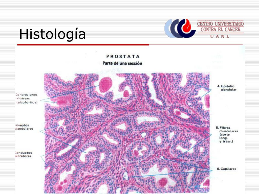 prostata histologia partes