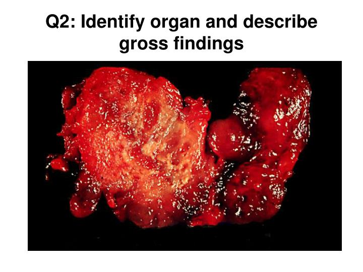 Q2: Identify organ and describe gross findings