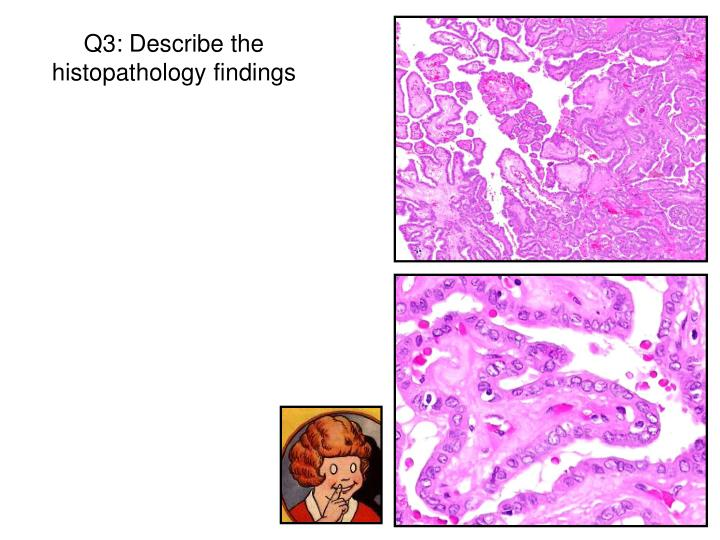 Q3: Describe the histopathology findings