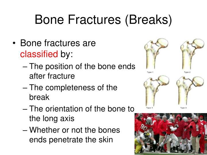 Bone fractures breaks