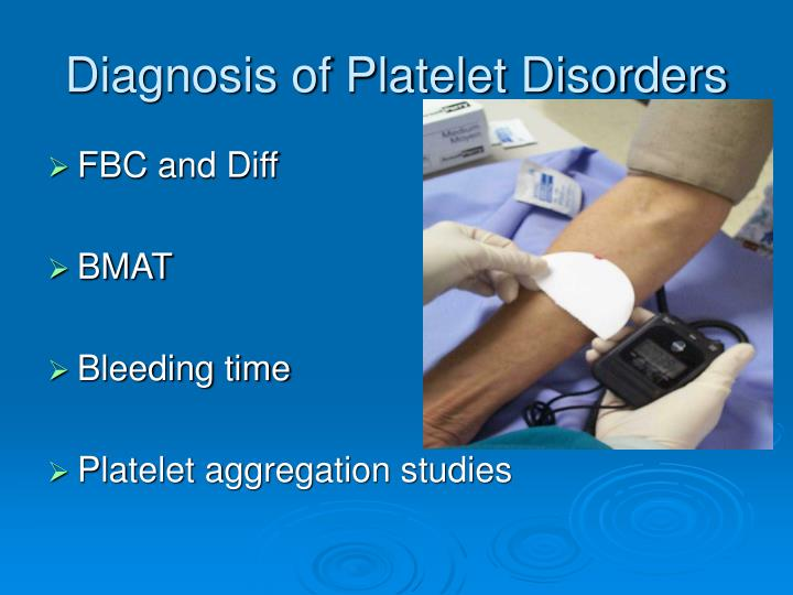 Diagnosis of Platelet Disorders
