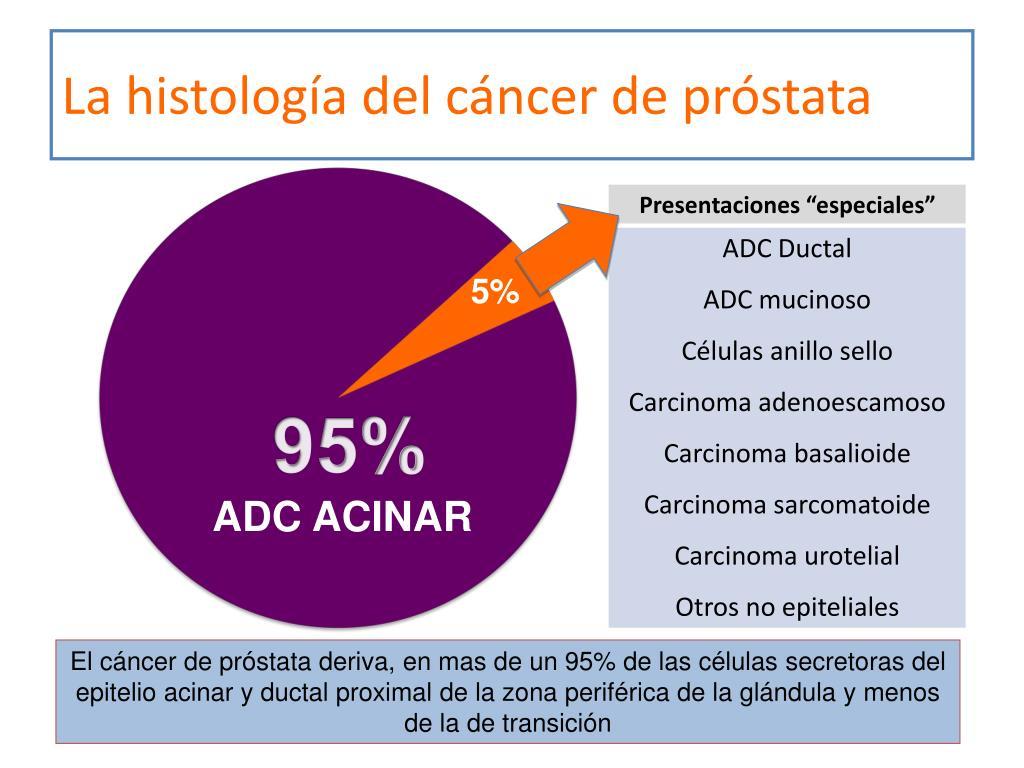 adc de prostata