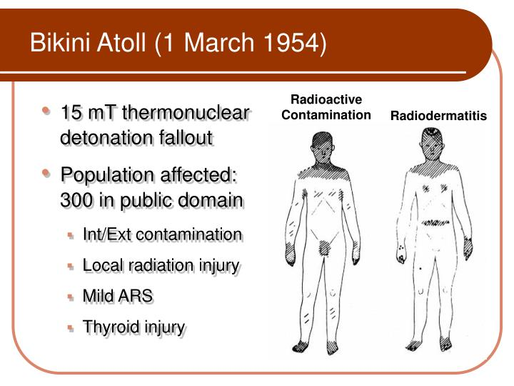Bikini Atoll (1 March 1954)