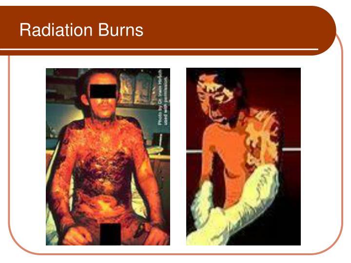 Radiation Burns