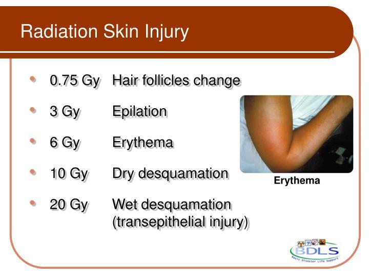 Radiation Skin Injury