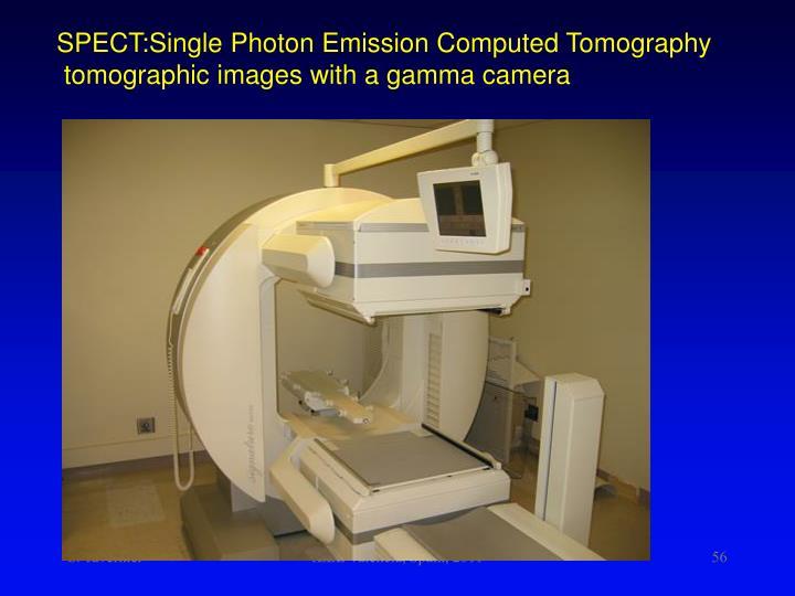 SPECT:Single Photon Emission Computed Tomography
