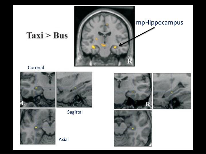 london taxi drivers  bus drivers  structural mri  neuropsychological analysis