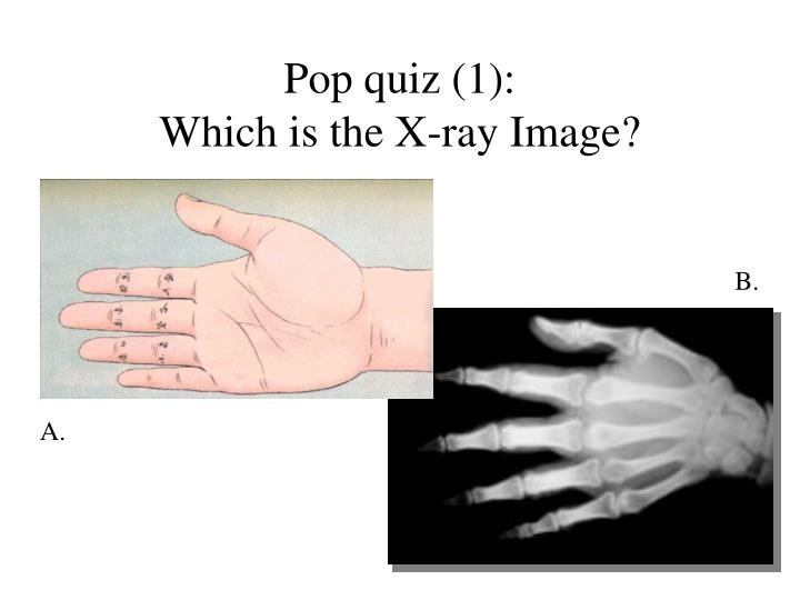 Pop quiz 1 which is the x ray image