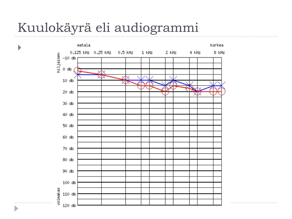 Audiogrammi