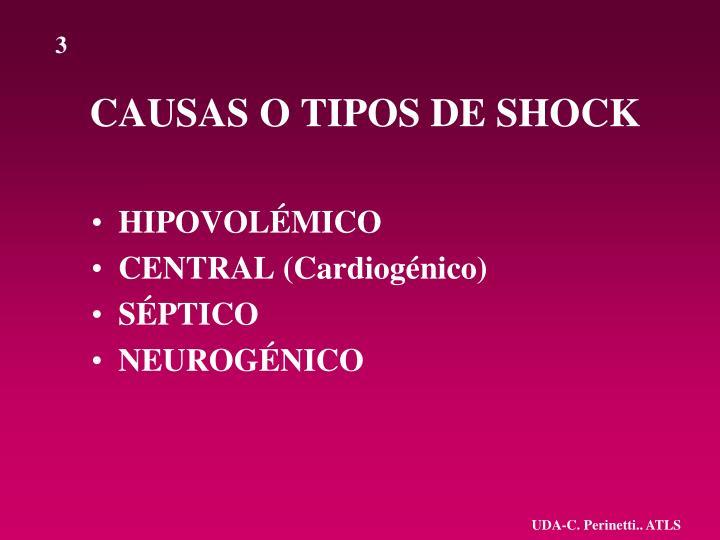 Causas o tipos de shock