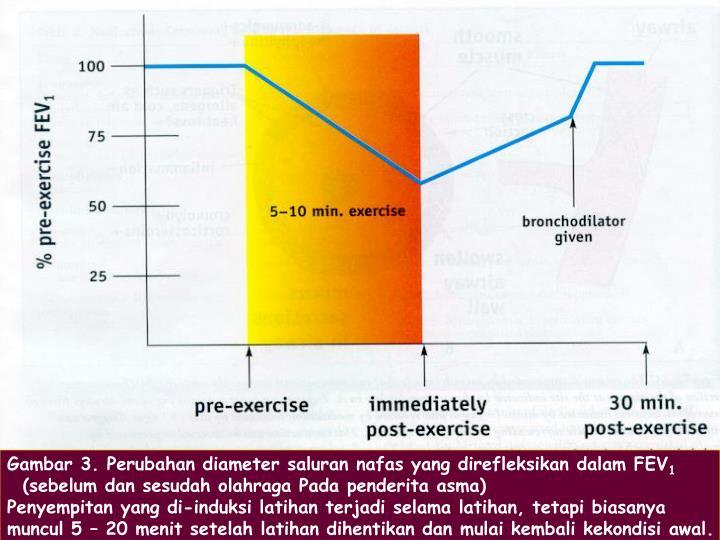 Gambar 3. Perubahan diameter saluran nafas yang direfleksikan dalam FEV