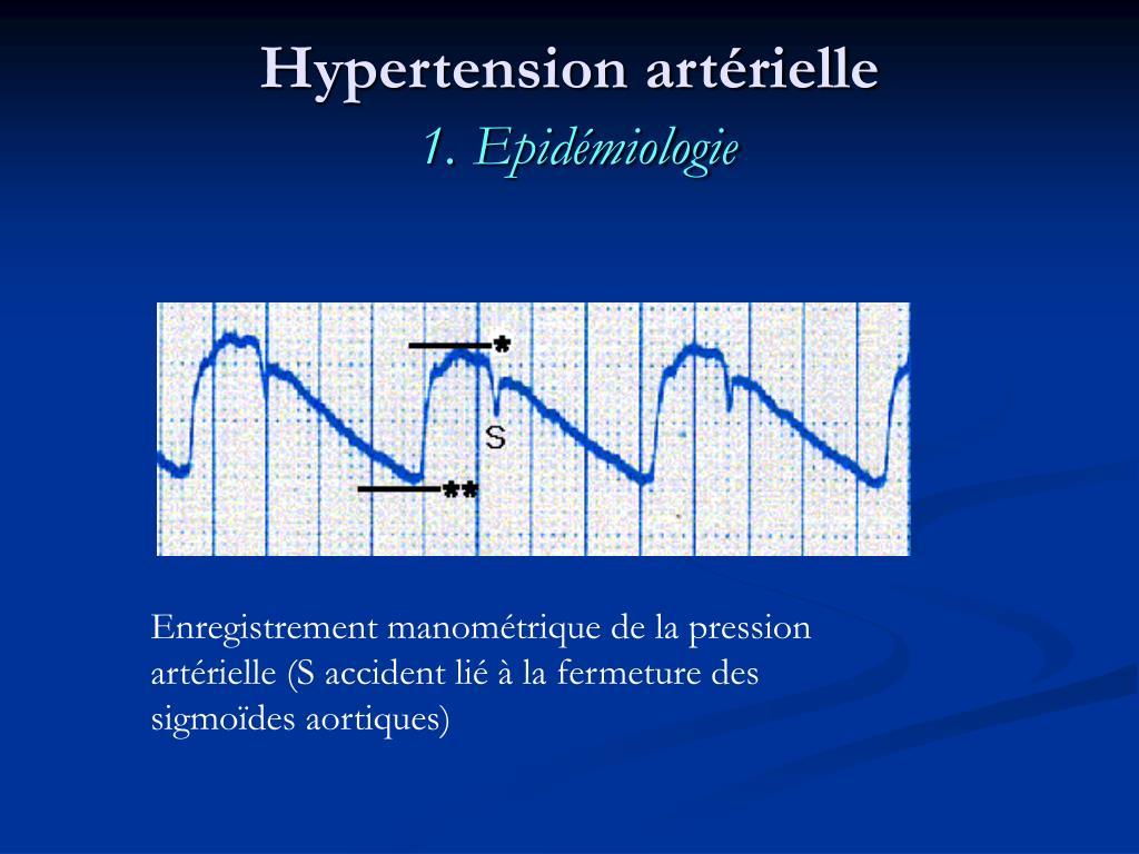 PPT - Hypertension artérielle: HTA PowerPoint Presentation..