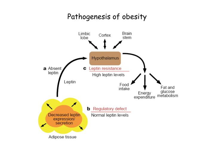 Pathogenesis of obesity