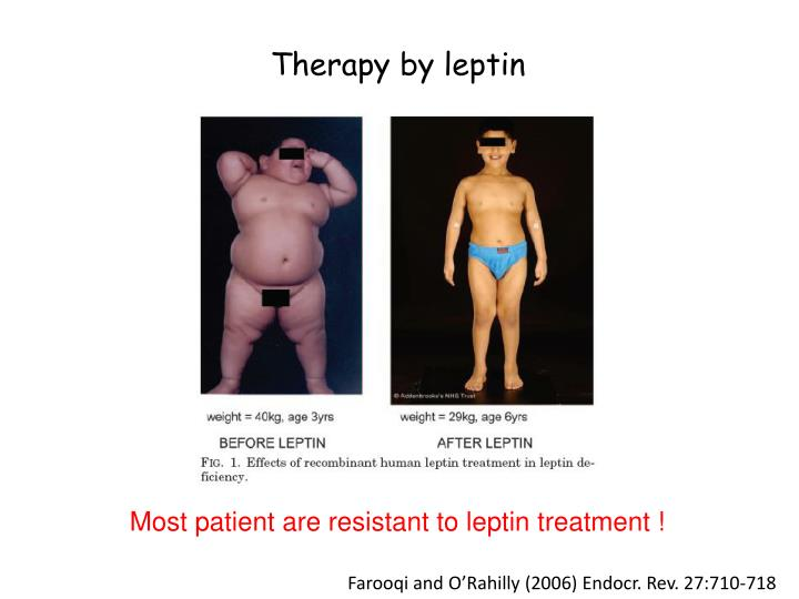 Therapy by leptin