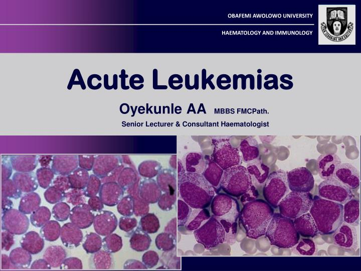acute lymphoblastic leukemia all Acute lymphoblastic leukemia (all) is a life-threatening malignant disease due to the sophisticated diagnostics, the complex therapy, its life-threatening course, and the rarity of the disease, the emergency admission to a specialized hematological center is urgently recommended.