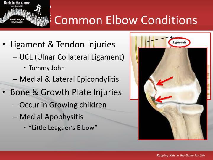 Common elbow conditions