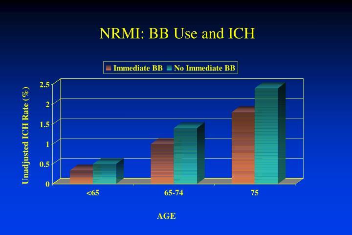 NRMI: BB Use and ICH