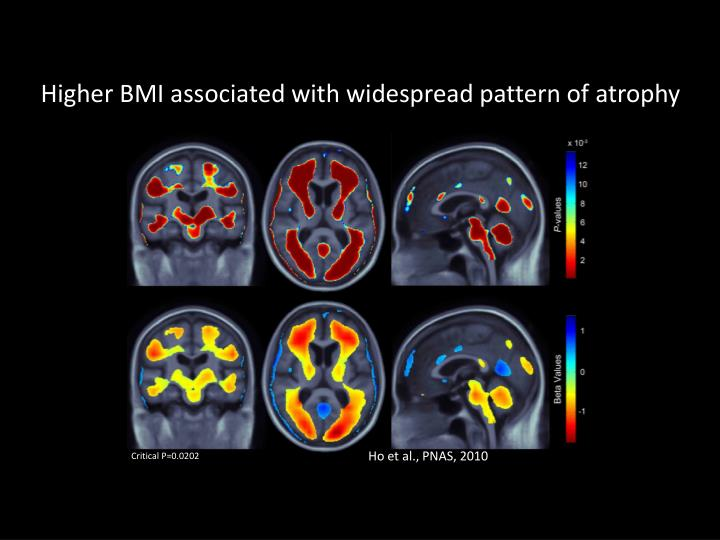 Higher BMI associated with widespread pattern of atrophy