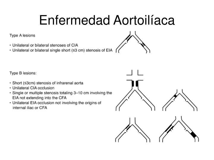 Enfermedad Aortoilíaca