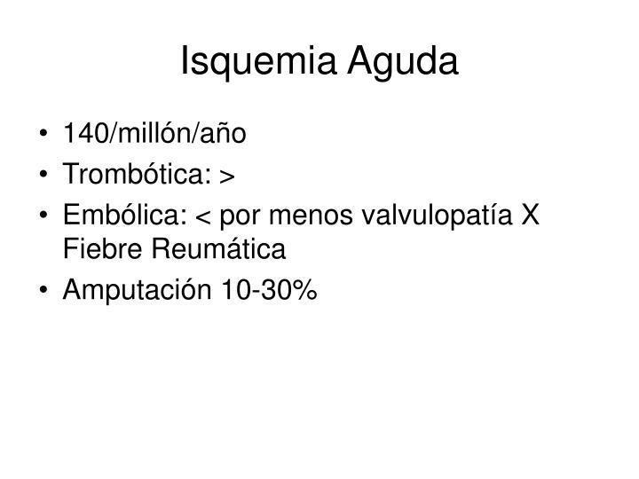 Isquemia Aguda