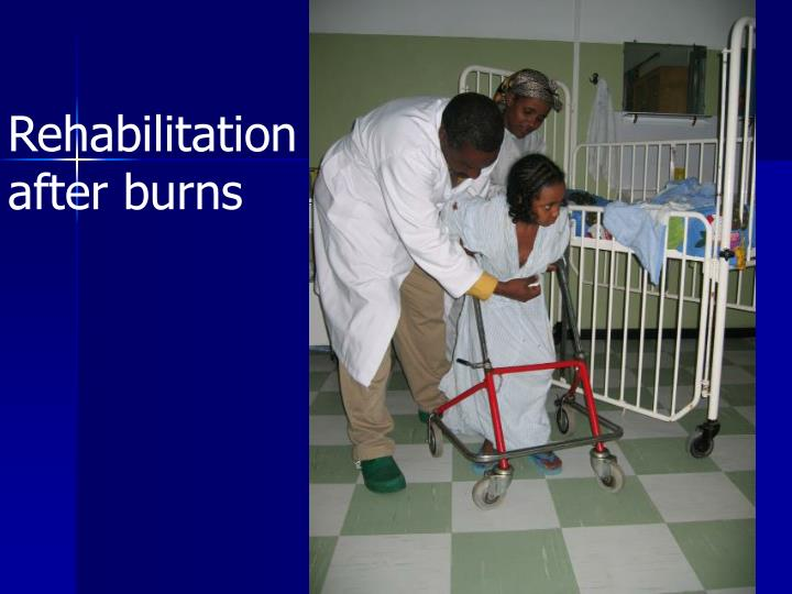 Rehabilitation after burns