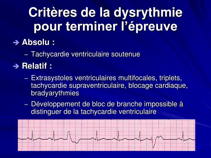 Critères de la dysrythmie