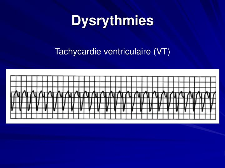Dysrythmies
