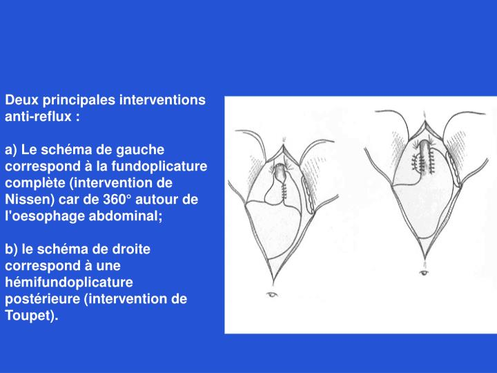 Deux principales interventions anti-reflux :