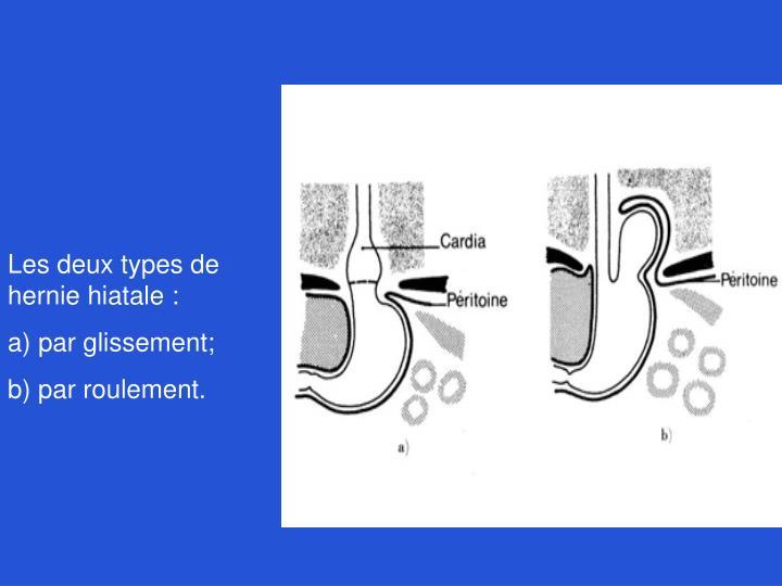 Les deux types de hernie hiatale :