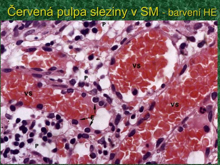 Červená pulpa sleziny v SM