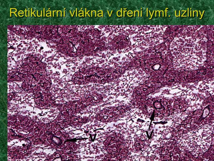 Retikulární vlákna v dřeni lymf. uzliny