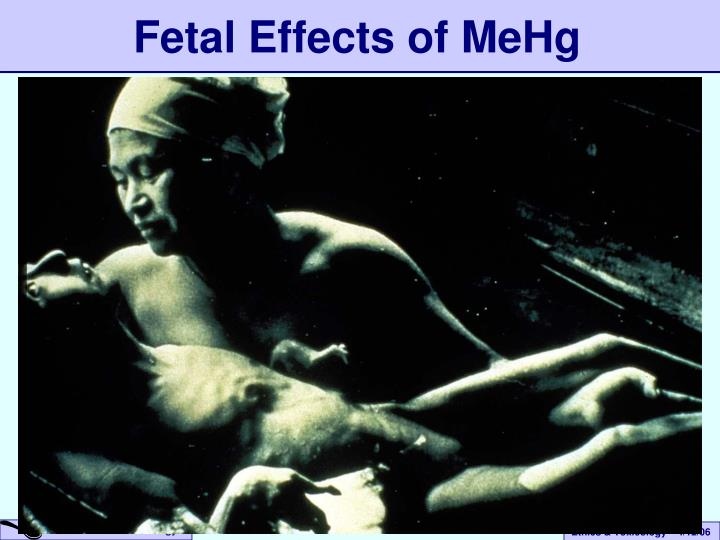 environmental effects on fetus Environmental toxins and pregnancy some studies have linked neurological disorders in babies and children to environmental toxins the mother was exposed to during her pregnancy babies who are exposed to environmental toxins while in the womb, especially during the first trimester, may suffer consequences which will follow them for their entire.