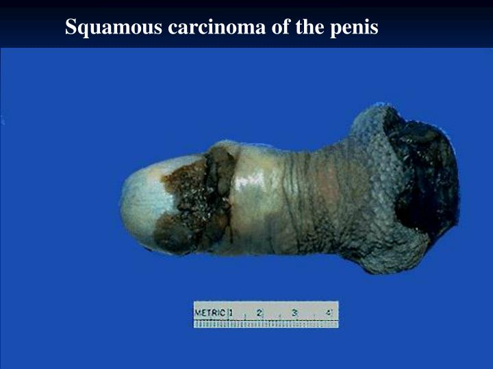 Squamous carcinoma of the penis