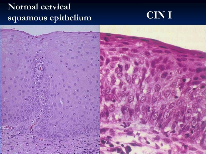 Normal cervical squamous epithelium