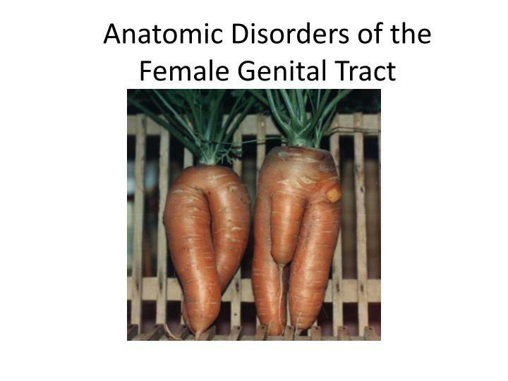 Anatomic Disorders of the Female Genital Tract