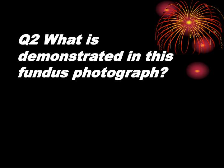 Q2 What is demonstrated in this fundus photograph?