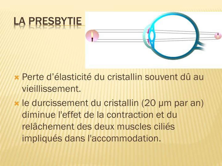 Perte d'élasticité du cristallin souvent dû au vieillissement.