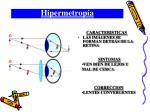 hipermetrop a