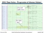 eeg time series progression of absence seizure